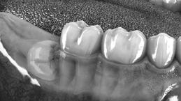 1-3-molar-1