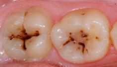 1-caso-molares-con-caries