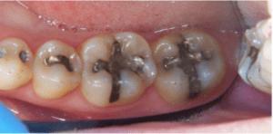 1-obturacion-con-amalgama