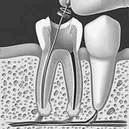 2-20100215162909-endodoncia