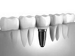 6-Implantes