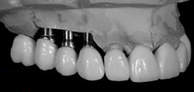 6-Protesis_RG