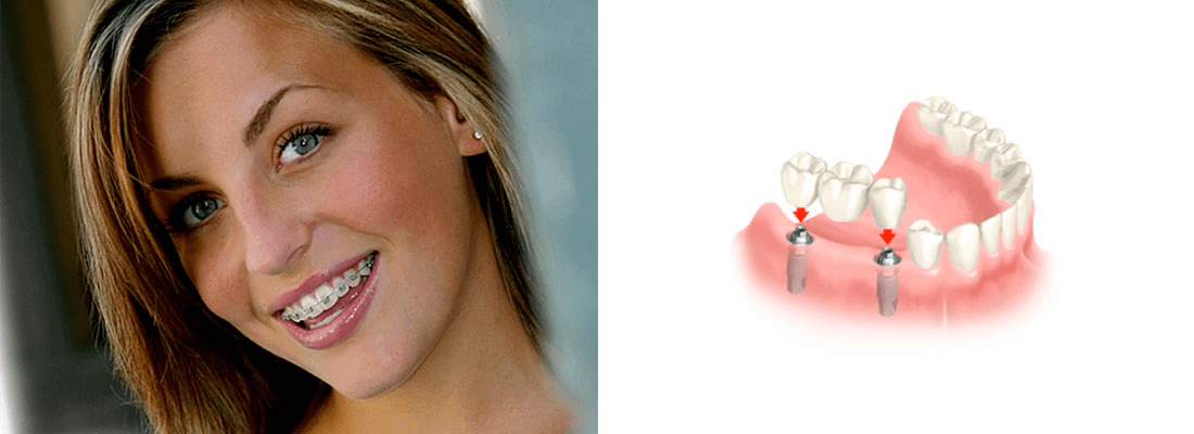 clinica dental Madrid